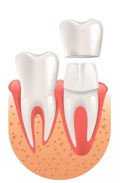 dental crown | el dorado hills ca