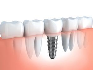 dental implants | el dorado hills