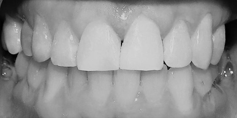 Cosmetic-Dental-Work-After-Image