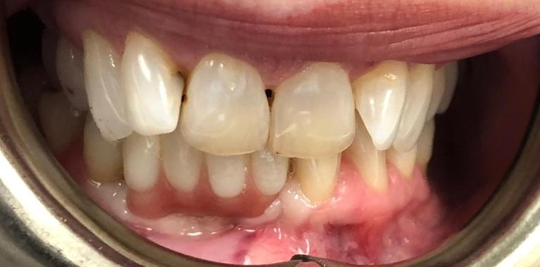 Implants-on-Lower-Front-Teeth-After-Image