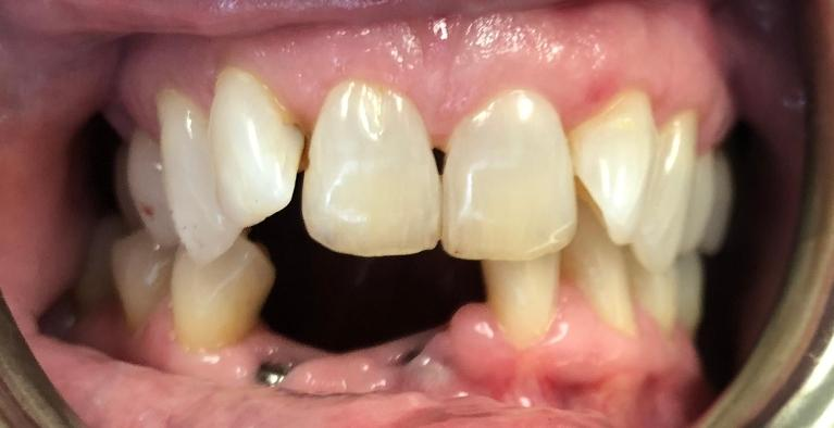 Implants-on-Lower-Front-Teeth-Before-Image